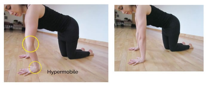 Plymouth Osteopaths Hypermobile Elbow And Wrist Joints